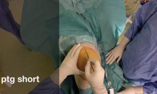 Protesi Totale Ginocchio – Short